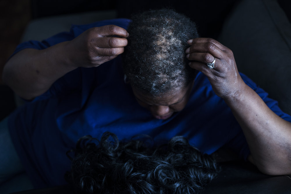 "Mae Lores, 48, of Flint, Mich., shows her hair loss after removing her wig at her home in Flint, Mich., on April 19, 2016. Following the city's switch to the Flint River, Lores suffered rapid hair loss which she now notes as a source of stress and anxiety. ""Your hair is a woman's charm,"" Lores said. Many women, especially those within the African-American community, shared stories of hair loss and skin rashes."