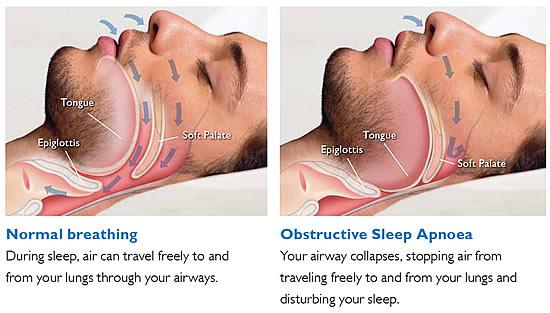 apnea 2.jpg