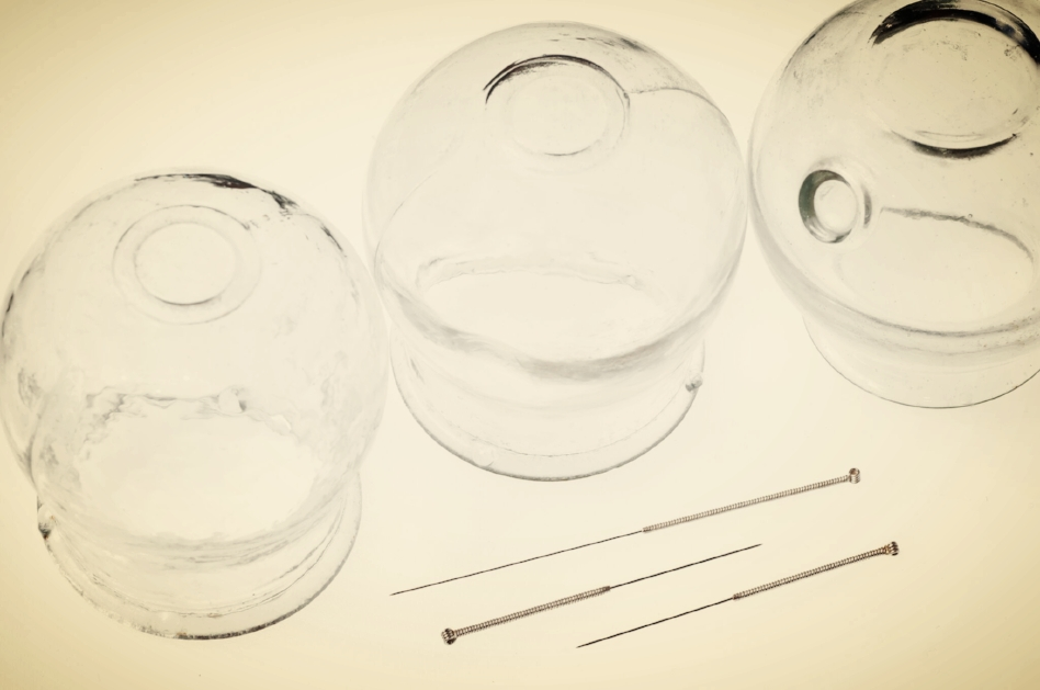 acupuncture-needles-and-cupping-glasses-154039507_4288x2848 (1)_preview.jpeg