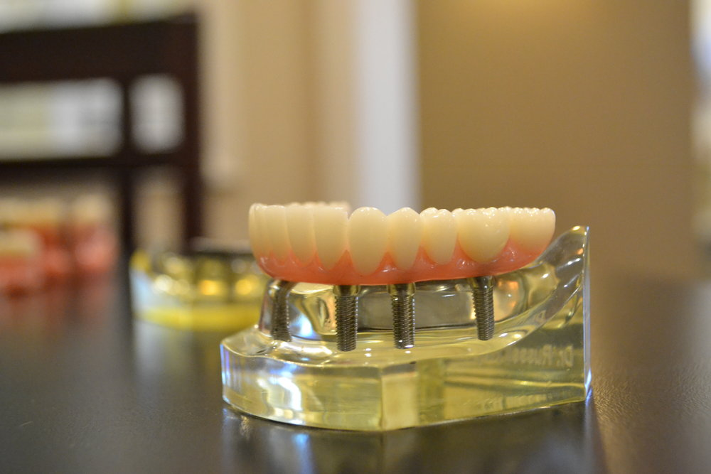 Dentures and Implants - Dr. Rooney loves making beautiful functional complete dentures and partial dentures.  Dr. Rooney has completed additional training in implant surgery.  Placing implants under a denture allows the denture to snap in place, giving you the confidence and function you desire.