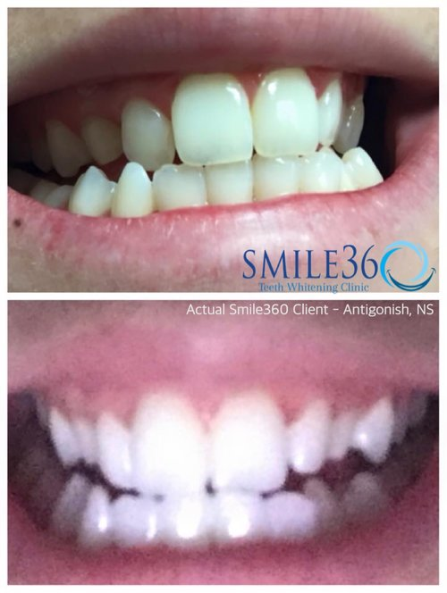 dartmouth ns teeth whitening