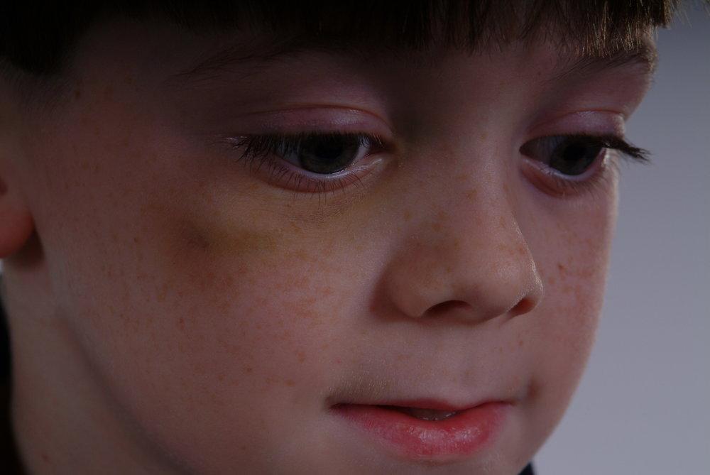 Black eyed Drew