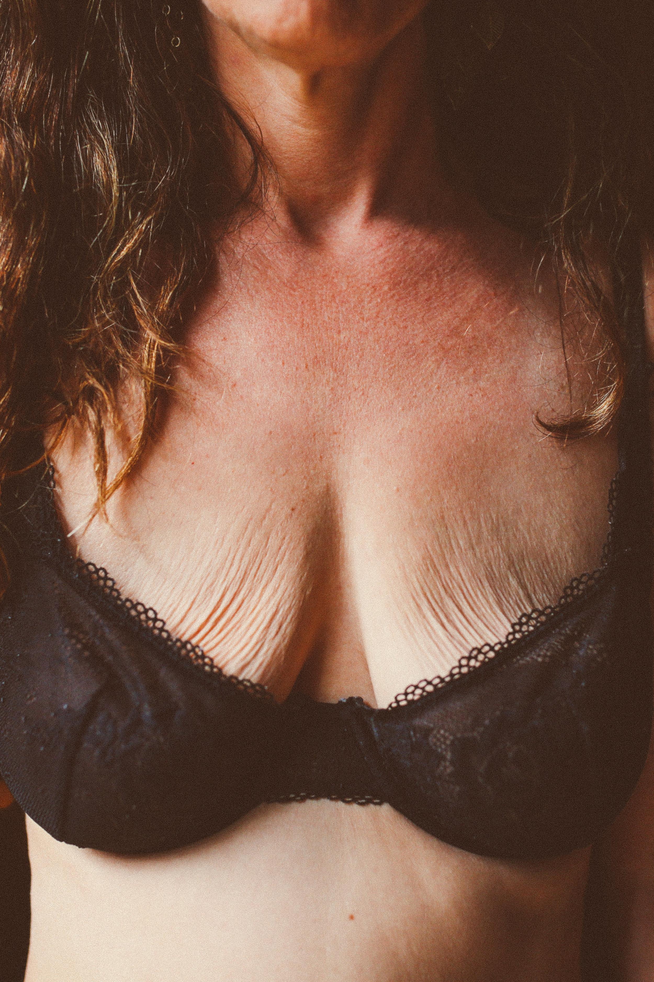 Saggy breast pics
