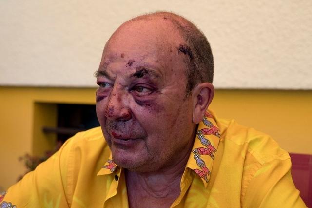 Depuis l'agression, Marc doit régulièrement se rendre à l'hôpital pour des contrôles. (info: Tribune de Genève)