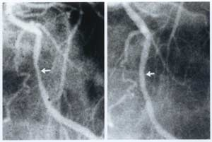 Figure 3-- Coronary angiograms of the proximal left anterior descending artery before (left) and showing 10% improvement (right) following approximately 60 months of a plant-based diet with cholesterol-lowering medication.