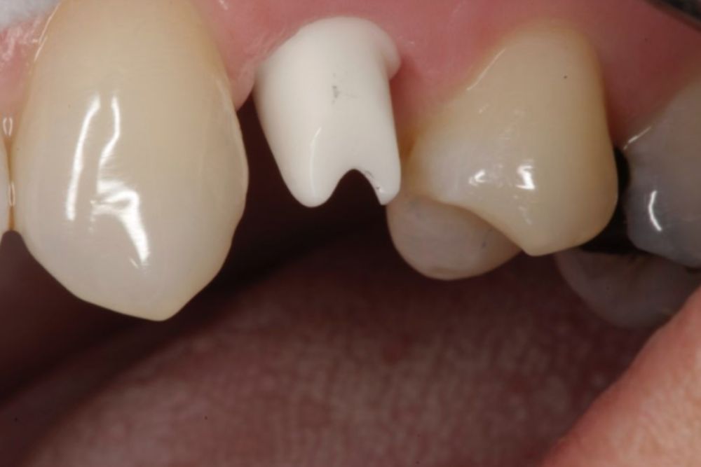 The abutment, which screws into the implant body, on which the crown is cemented