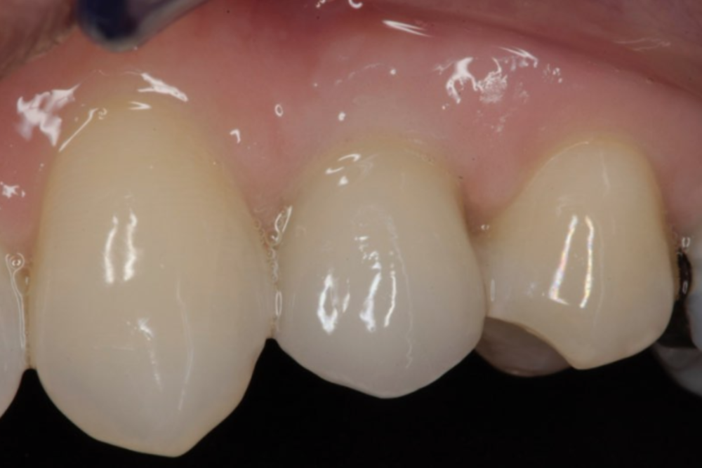 Implant with crown in place - looks just like a natural tooth!