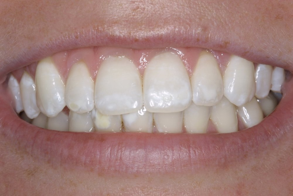 After whitening - white spots blend in