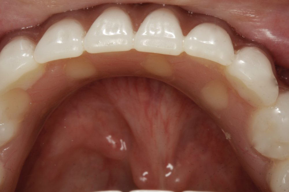 Bottom hybrid denture - gone are the days of lower dentures falling out or moving around due to the tongue
