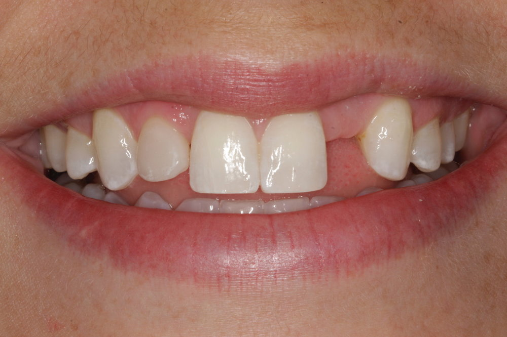 Before - lateral incisors, one missing and one undersized