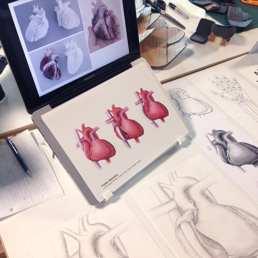Illustrations of the heart (showing the Fontan procedure) as part of an honours project looking into the effective design of medical illustrations for different users in the hospital.