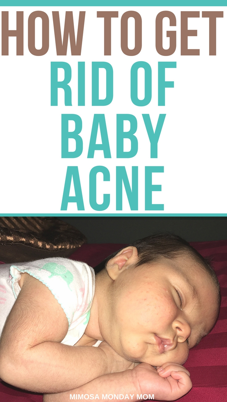 Baby acne treatment