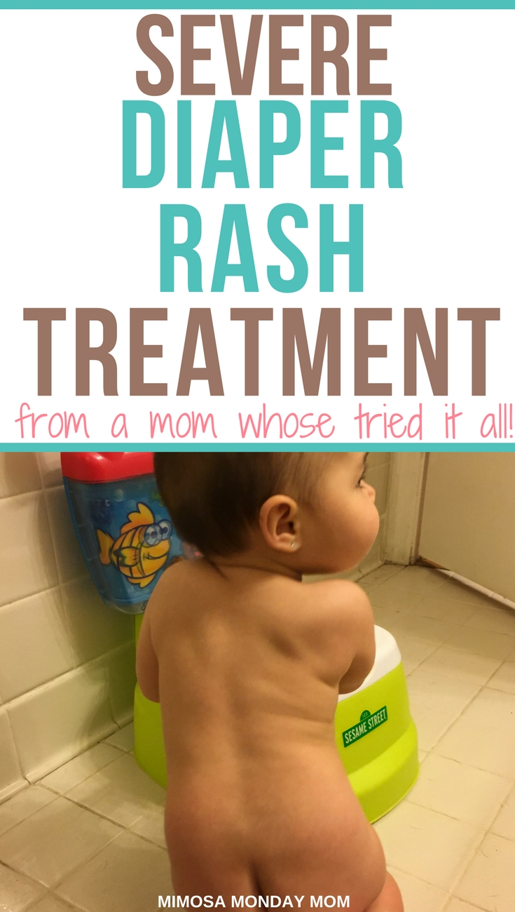 severe diaper rash treatment