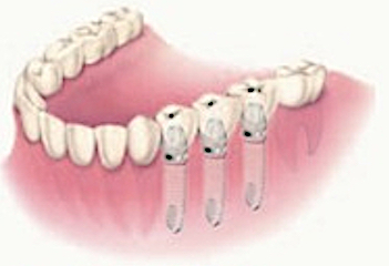 Implant-Supported Bridge  The multiple-tooth restoration is used when two or more teeth are missing. Implants are placed at the site of each missing tooth. In cases when three adjacent teeth are missing, it may be possible to place only two implants, one on each end. The implants are surgically placed into the jawbone to function like the root of your missing tooth. Dental implants can maintain your surrounding bone and soft tissue, and will replace your missing tooth with a natural-looking restoration.
