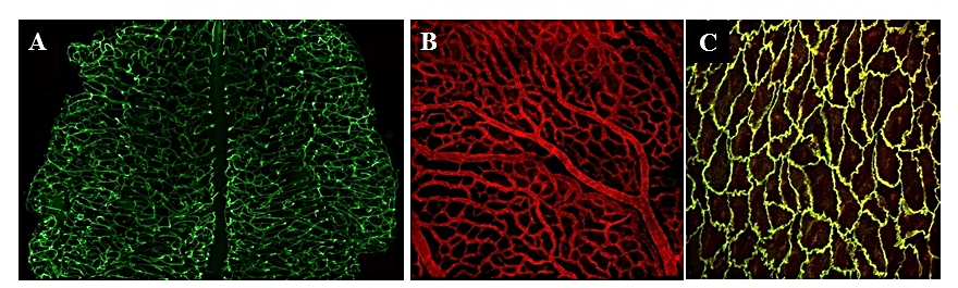 Figure 2: In vivo analysis of vascular patterning and juction formation using mouse genetic models. A) Hind brain B) Yolk sac C) En face aorta showing endothelial cell adhesion molecules.