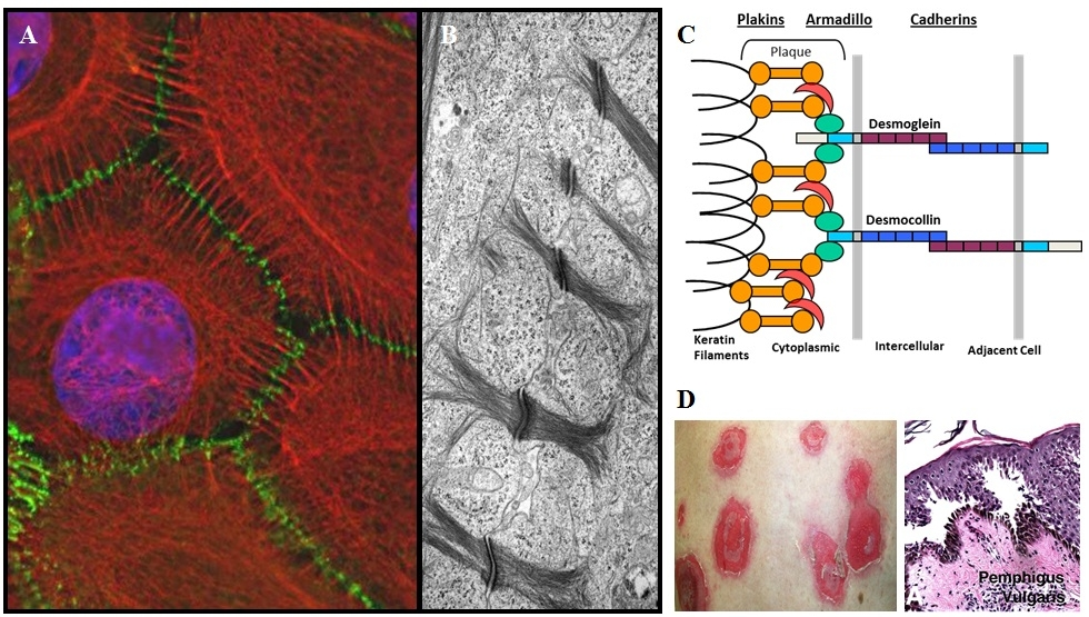 Figure 3: Desmosomes visualized by immunofluorescence (A) and electron microscopy (B). Organization of desmosomal components (C). Epidermal blistering in the human skin disease pemphigus (D).