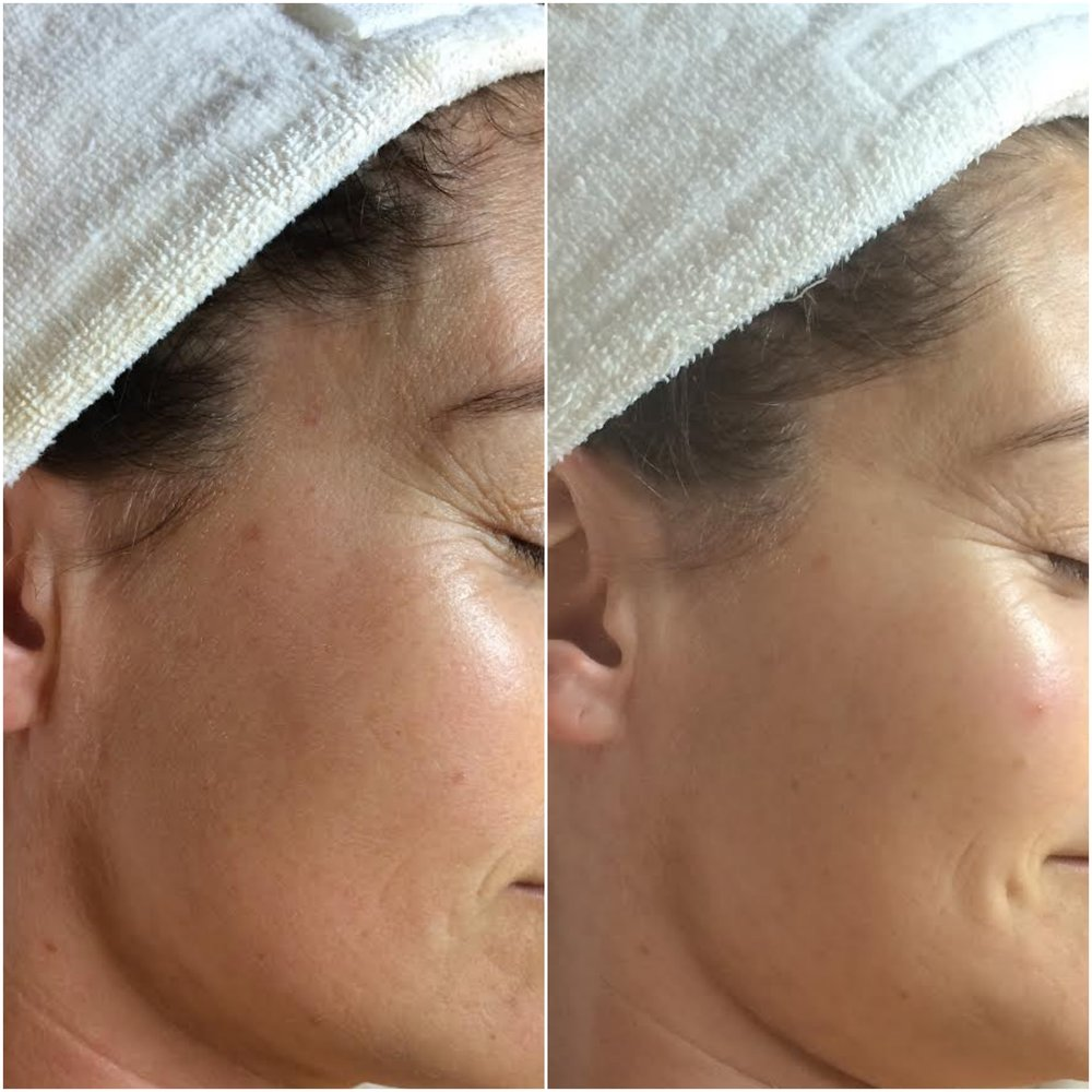Collagen increased, fine lines filled using human stem cell microneedling series