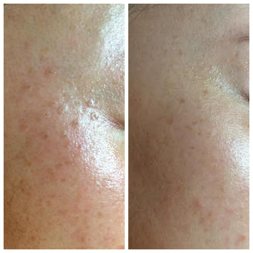 Moles removed using hyfrecation and NŪR hi-tech facial series