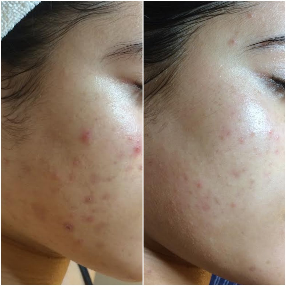 Cystic Acne cleared using NŪR hi-tech facial series