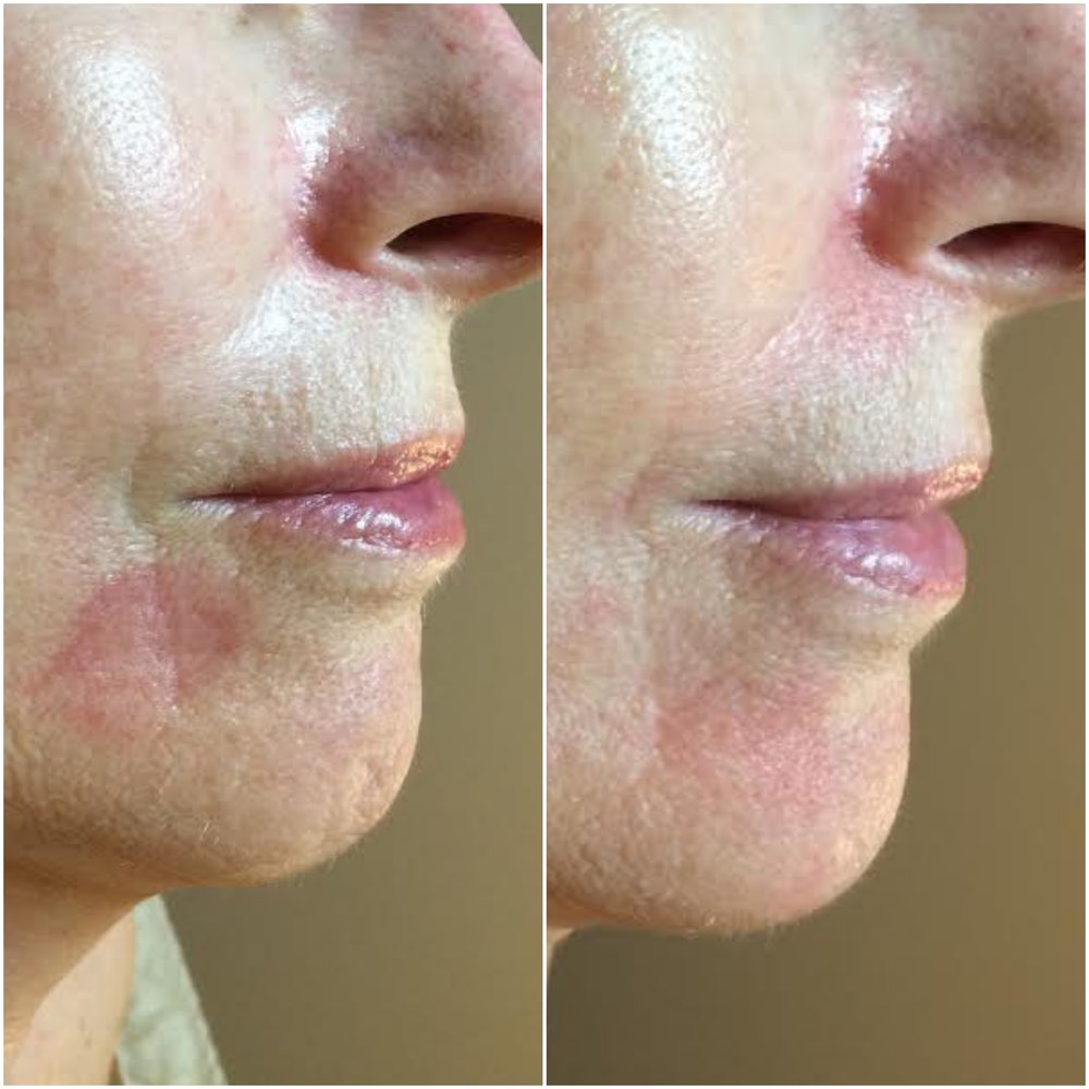Erythema reduced, fine lines filled using human stem cell microneedling series