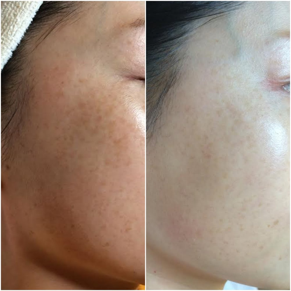 Hyperpigmentation reduced, moisture tolerance increased using human stem cell microneedling series