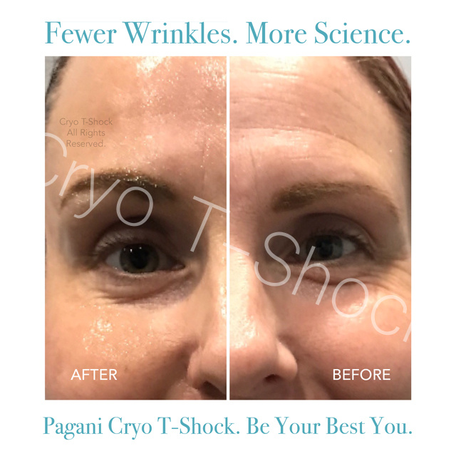 Wrinkles (1).jpg