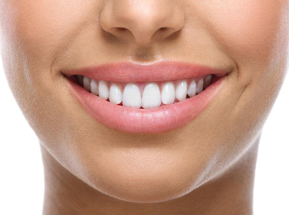 Power Bleaching - White Smile Zahnaufhellung