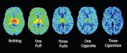 smoking MRI