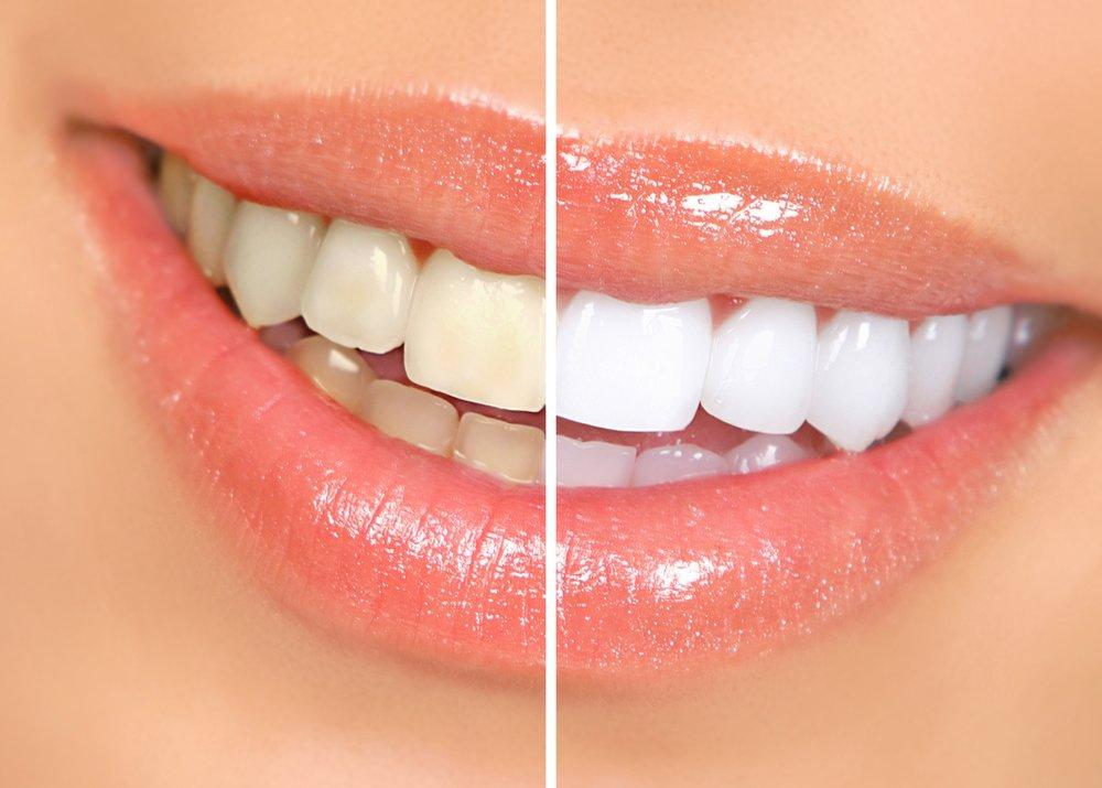 Teeth Whitening - more info →