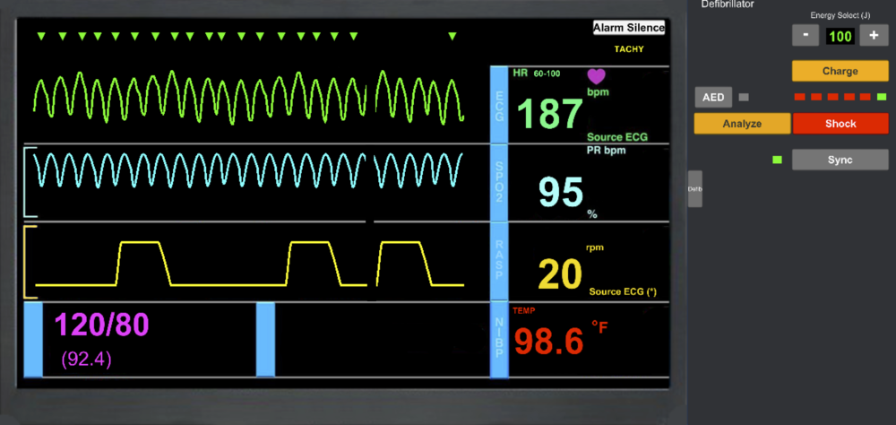 Ventricular tachycardia with cardioversion