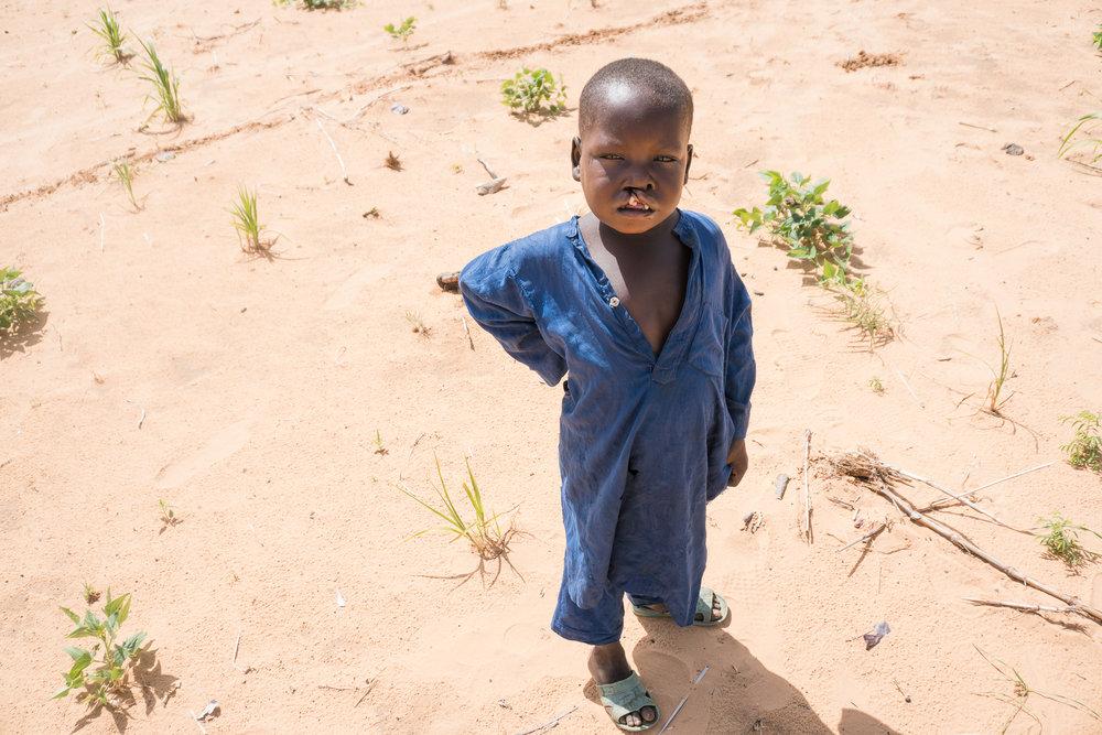 Cleft-Kinder-Hilfe Schweiz ckhs-0996.jpg