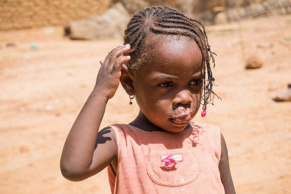 Cleft-Kinder-Hilfe Schweiz ckhs-1091.jpg