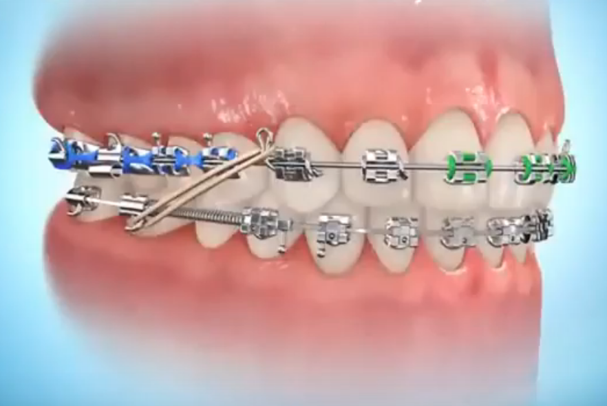 know the parts of your braces