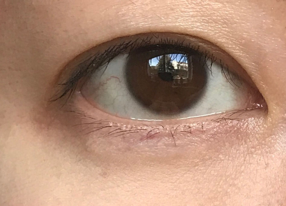 Without Eye Cream
