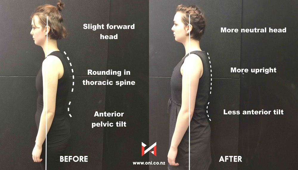 Posture Before After Image.jpg