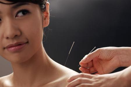 Acupuncture - with Dr. Raul Ramirez