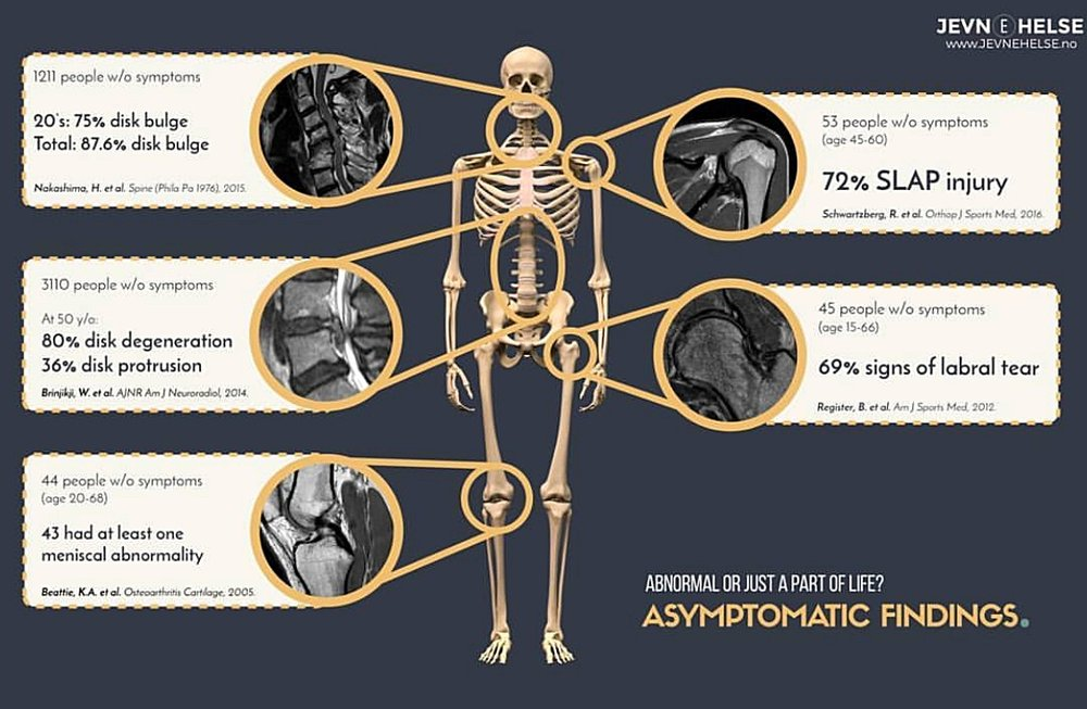 Asymptomatic Rates.jpg