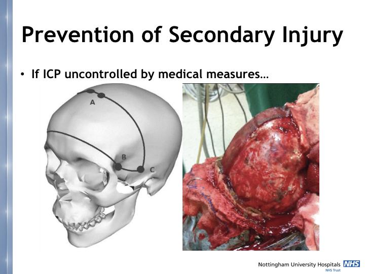 Neurosurgery in the emergency department.021.jpeg