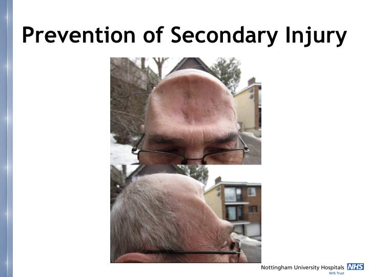 Neurosurgery in the emergency department.022.jpeg
