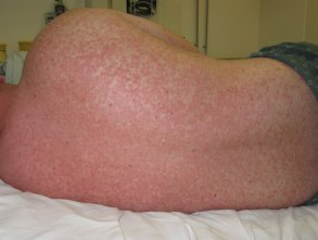 measles08.jpg