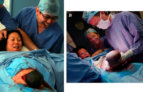Parental participation. Dropping the drape and tilting the head of the bed upwards allows the parents to establish eye contact and learn of the baby's sex as he/she emerges. The father may stand if he wishes. (A) and (B) show representative photographs from different deliveries (with permission).