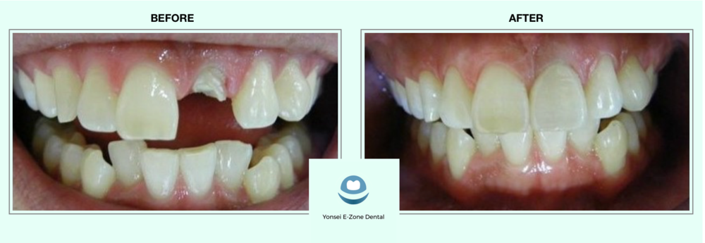 Yonsei E-Zone Dental before and after full crown