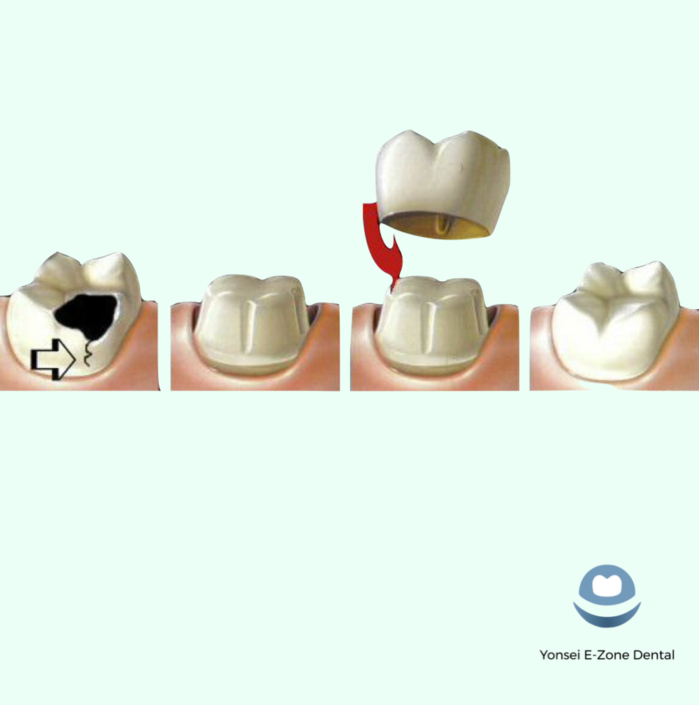 Yonsei_E-Zone_Dental_Crown