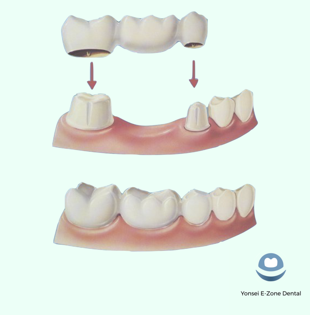 Yonsei_E-Zone_Dental_Bridges