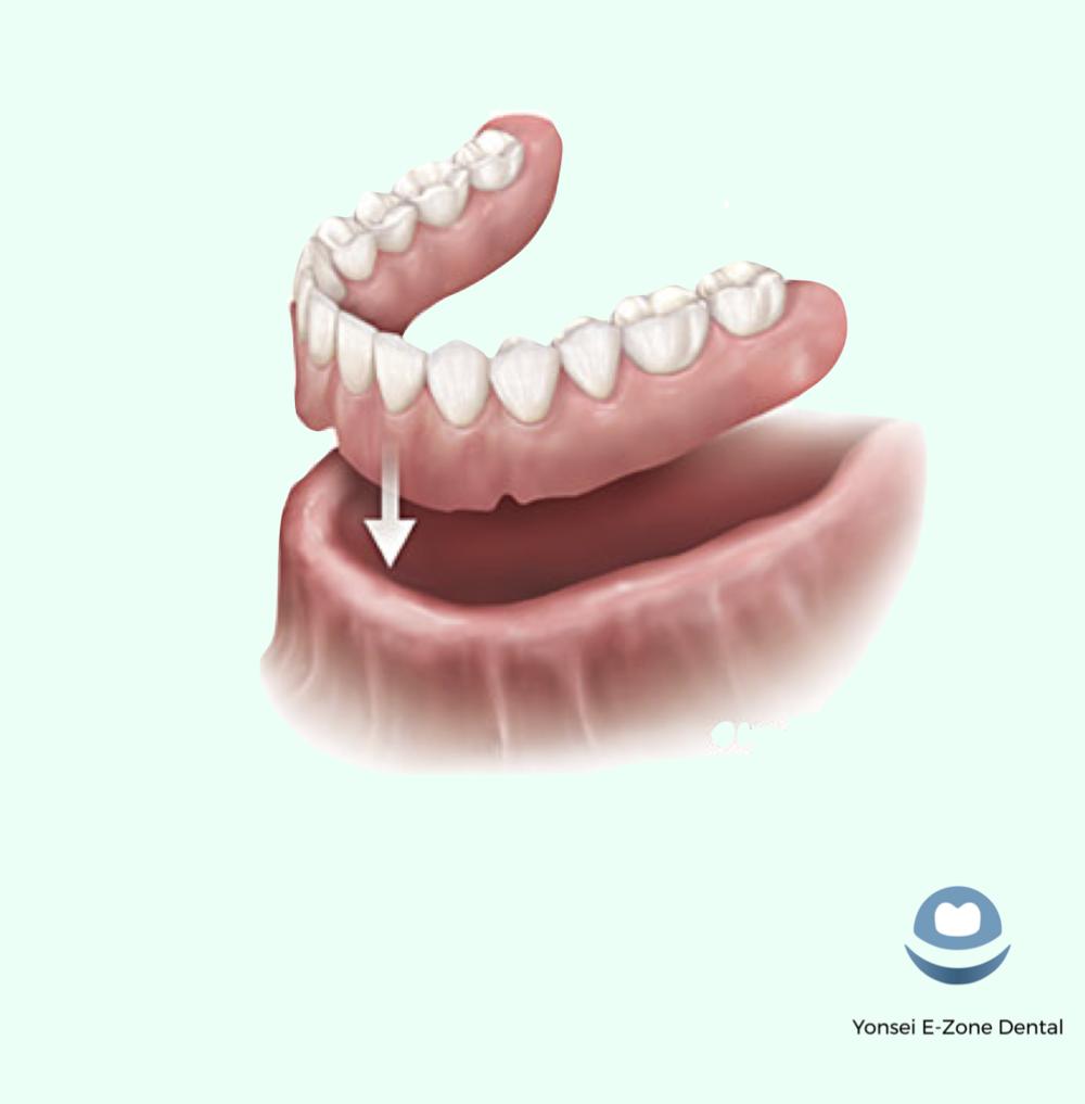 Yonsei_E-Zone_Dental_Dentures_Complete