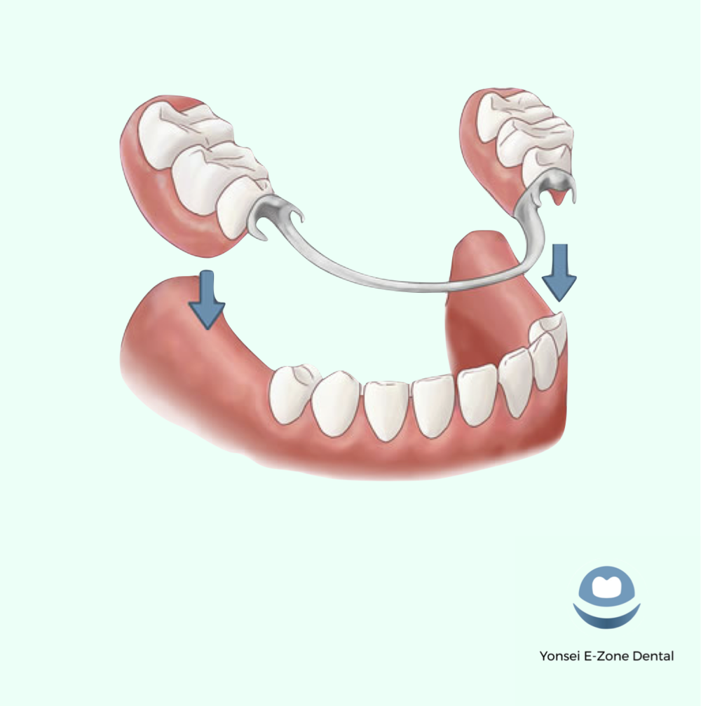 Yonsei_E-Zone_Dental_Dentures_Partial