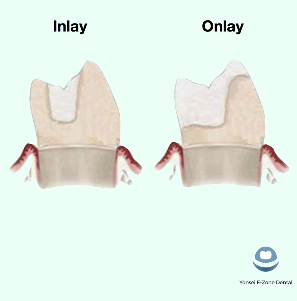 Yonsei_E-Zone_Dental_Inlay_and_Fillings