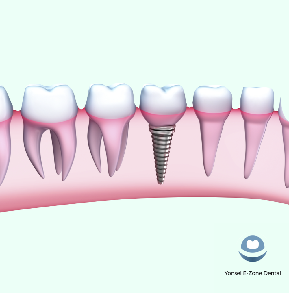 Yonsei_E-Zone_Dental_Implants