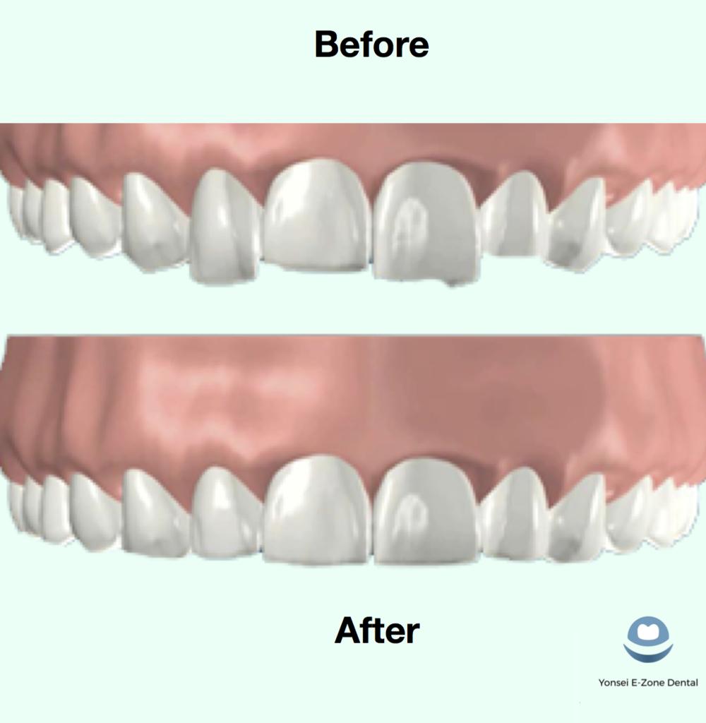Yonsei_E-Zone_Dental_Teeth_Reshaping