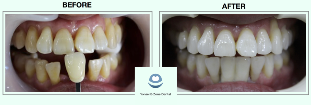 Yonsei_E-Zone_Dental_Implant_Before-After3.png